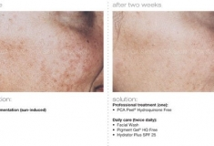 PCA-Peel-Before-After