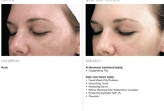 a05bcb3e0687bfdbdc02b17371210572--chemical-peel-evolution